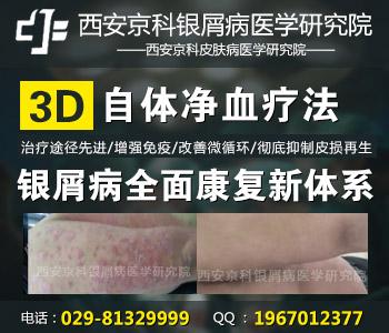 银屑病早期能治愈吗3d净血疗法